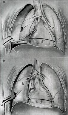 Sucking_chest_wound_mechanics (Tension Pneumothorax).jpg